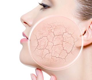 Ce provoacă uscarea pielii