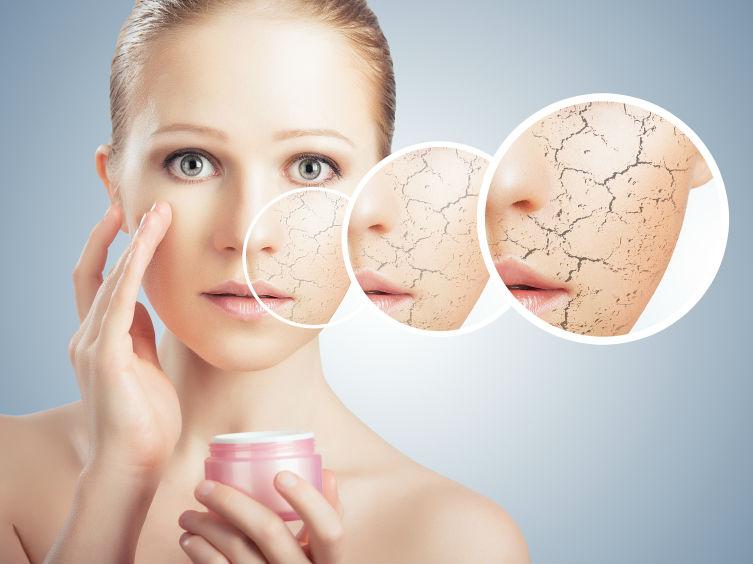 Efectul de piele uscata la formarea ridurilor